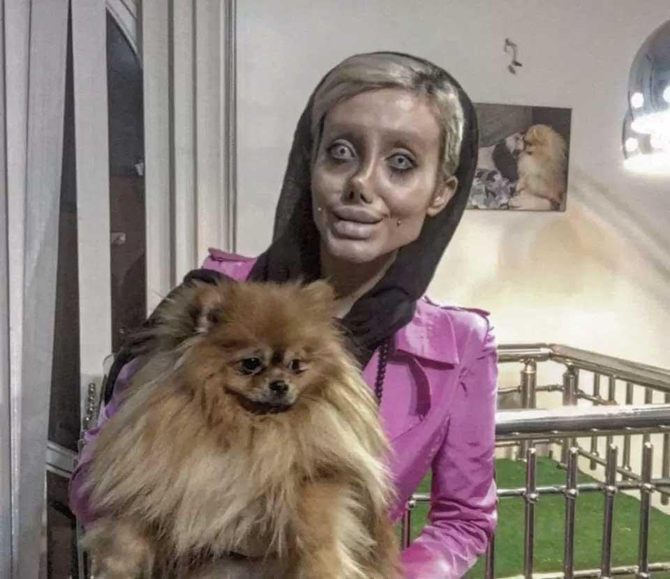 To Look Like Angelina Joline, Iranian Girl Undergoes Devastating Surgeries
