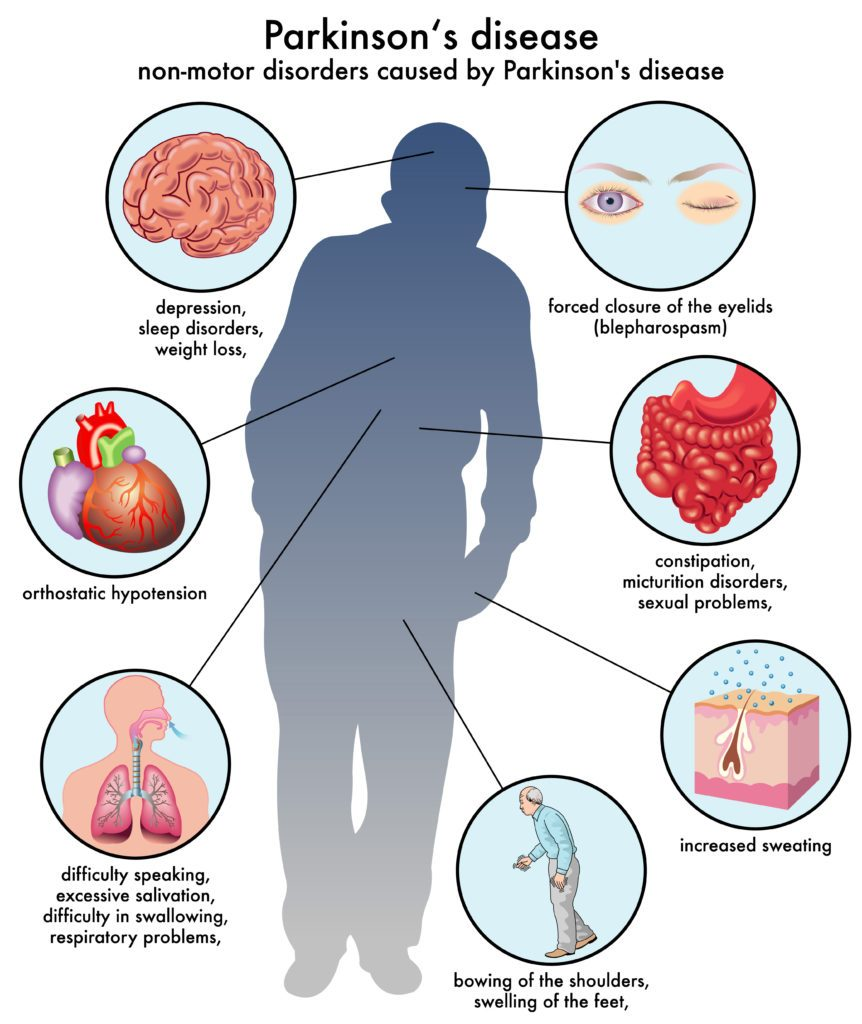 This World Parkinson's Day, learn about the symptoms of the