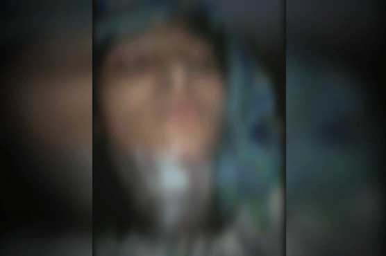 Female teacher set on fire for refusing marriage proposal in Murree