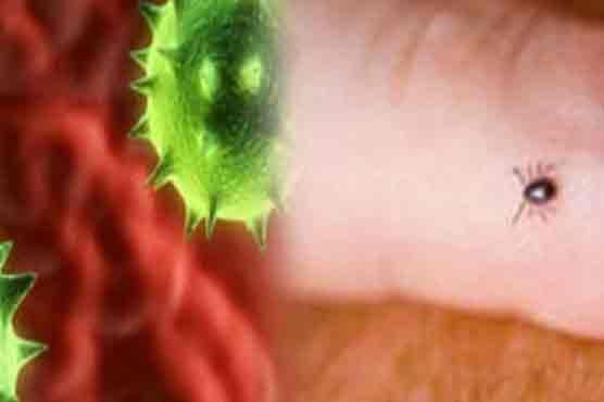 Another Congo virus case detected in Balochistan