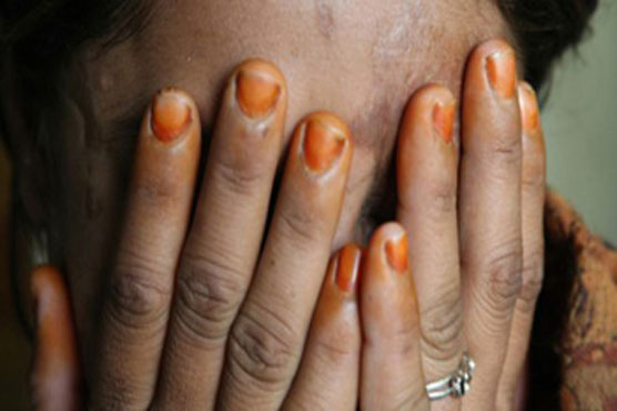 Acid attack on UP rape victim again