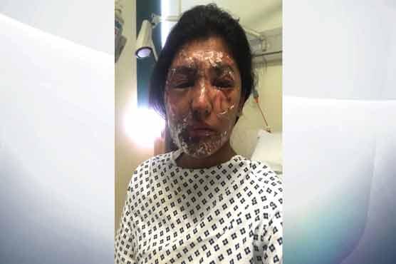 Man Arrested Over Beckton Acid Attack On Muslim Cousins