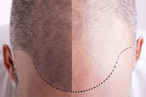 Causes of baldness, gray hair identified - Technology
