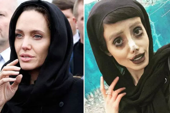 Woman 'looks like Corpse Bride' after surgery to look like Angelina Jolie