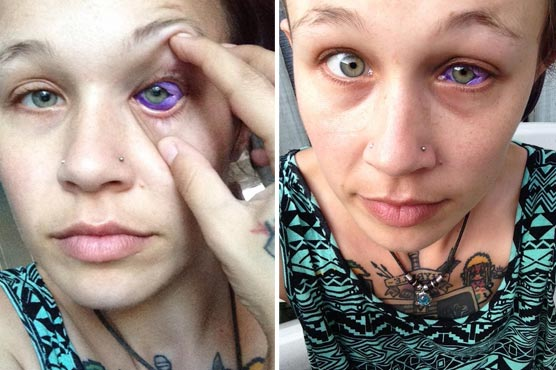 Canadian Model Might Lose Her Vision After Eyeball Tattoo Goes Wrong Weirdnews Dunya News