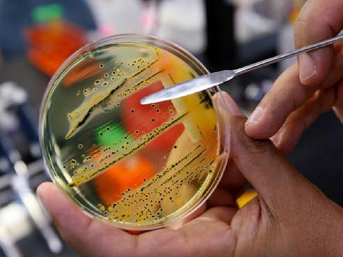 Superbugs kill 33000 in Europe every year
