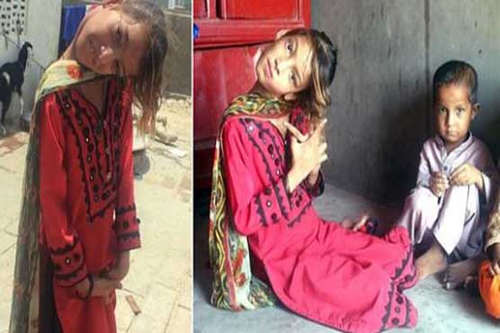 Girl with bent head at 90 degrees awaits help in Sindh