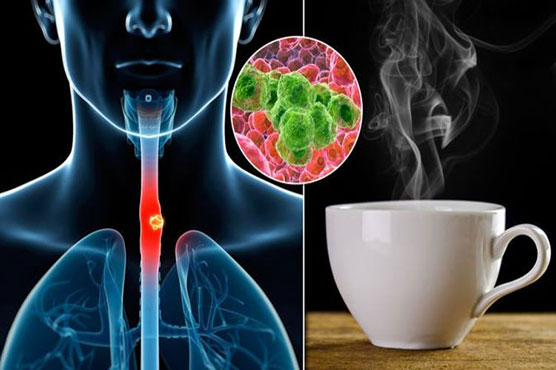 Hot drinks link to oesophageal cancer