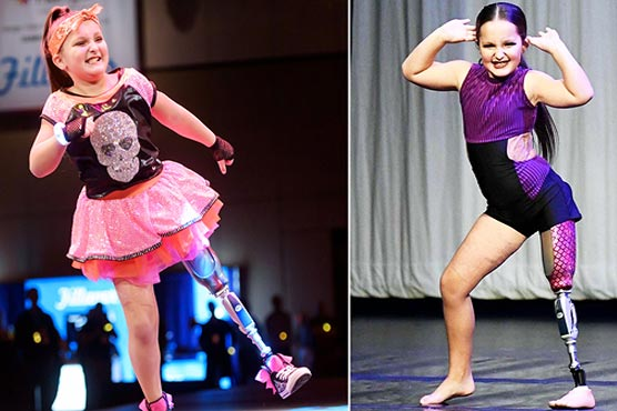8-year-old amputee astonishes with dance routine