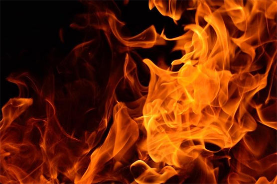 کراچی: 36 سالہ خاتون کو مبینہ پٹرول چھڑک کر آگ لگا دی گئی، تفتیش جاری