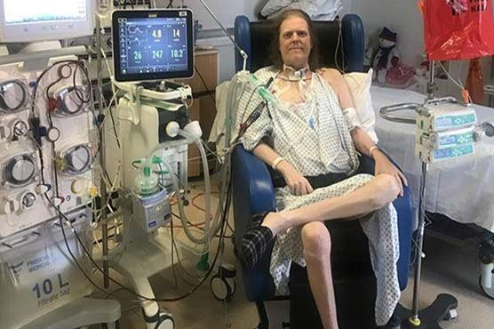 UK man spends over a year in hospital due to coronavirus