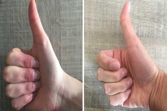 سیدھے اور لچکدار انگوٹھے سے متعلق دلچسپ تحقیق سامنے آ گئی